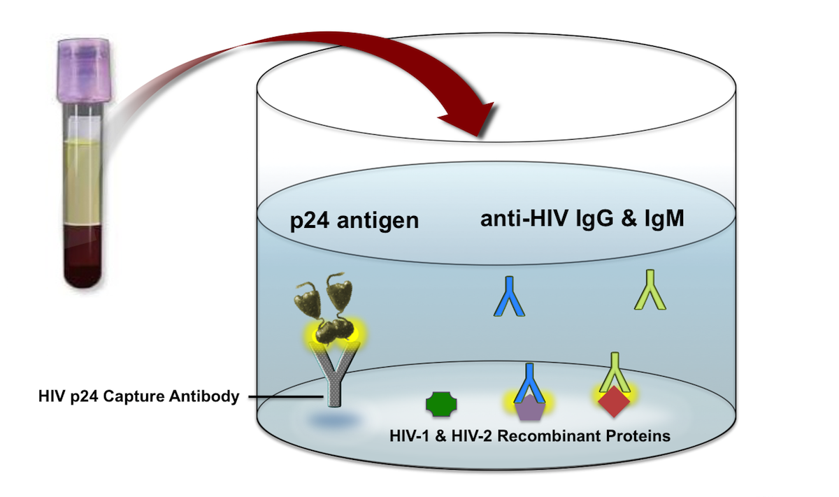 In this example, the patient sample contains HIV-1 p24 antigen and anti-HIV antibodies that bind to the HIV-1 p24 capture antibody and the HIV recombinant proteins.<div>Illustration: David H. Spach, MD</div>