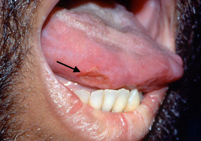 The black arrow points to large aphthous lesion on lateral tongue.<div>Photograph from David H. Spach, MD</div>