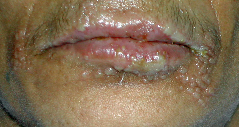 Note the extensive number of lesions and the involvement of the entire lip region.<div>Photograph from David H. Spach, MD</div>