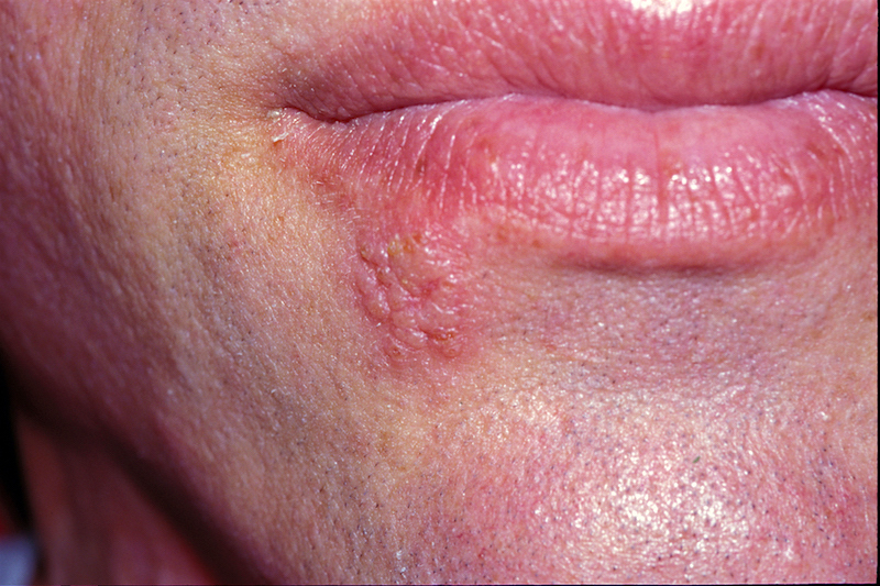 Characteristic focal cluster of vesicular lesions with a surrounding erythematous base.<div>Photograph from David H. Spach, MD</div>