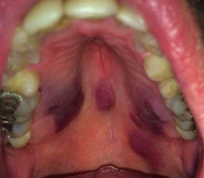 Core Concepts - Oral Manifestations - Basic HIV Primary ... Kaposi Sarcoma Mouth