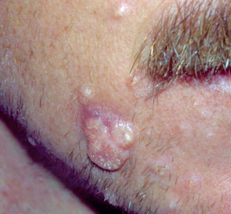 This patient has a giant molluscum lesion and multiple smaller lesions.<div>Photograph credit: David H. Spach, MD</div>