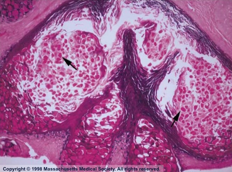 This hematoxylin and eosin stained skin biopsy taken from a patient with AIDS and molluscum shows lobules of keratinocytes that contain numerous large eosinophilic intracytoplasmic inclusion bodies (Henderson-Patterson, or molluscum bodies) [arrows]. Magnification x20.<div>Source: Cotell SL, Roholt NS. Images in clinical medicine. Molluscum contagiosum in a patient with the acquired immunodeficiency syndrome. N Engl J Med. 1998;338:888. Reproduced with permission from the Massachusetts Medical Society. Copyright © 1998 Massachusetts Medical Society. All rights reserved.</div>