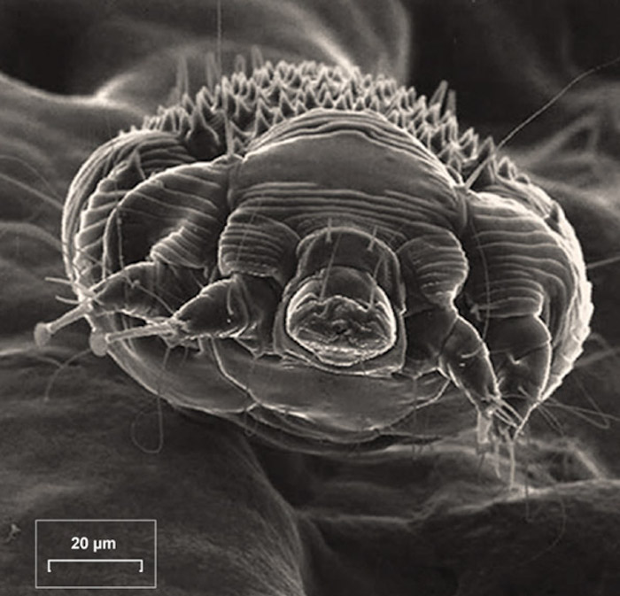 This scanning electron microscopy shows a scabies mite (<em>Sarcoptes scabiei</em> var. <em>hominis</em>) in a specimen obtained from the scraping of woman's hand.<div>Source: Stoffle NN, Cohen PR. Images in clinical medicine. Sarcoptes scabiei infestation. N Engl J Med. 2004;350:e20. This image is reproduced with permission from the Massachusetts Medical Society. Copyright © 2004 Massachusetts Medical Society. All rights reserved.</div>