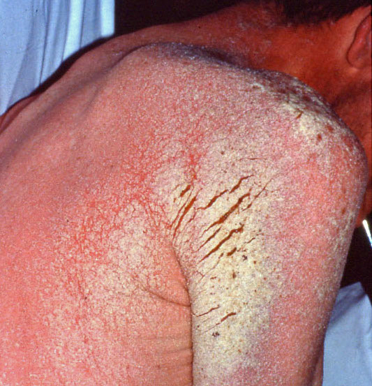 This image of a patient with AIDS and a CD4 count less than 100 cells/mm<sup>3</sup> shows a diffuse erythematous rash, with plaque-like lesions in the shoulder region.<div>Photograph credit: David H. Spach, MD</div>