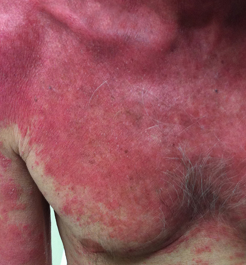 This photograph was taken approximately 1 week after treatment for psoriasis was initiated and scaling of the lesions had resolved at this point of treatment.<div>Photograph by David H. Spach, MD</div>