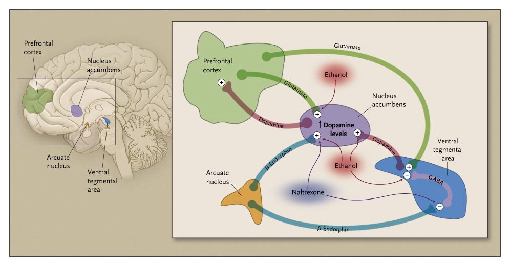 This figure shows ethanol leading to increased dopamine levels in nucleus accumbens. Naltexone works by blocking opioid receptors and causes a reduction in dopamine levels in the nucleus accumbens, which reduces the reward or pleasure of associated with alcohol ingestion.<div>Source: Anton RF. Naltrexone for the management of alcohol dependence. N Engl J Med. 2008;359:715-21.</br>