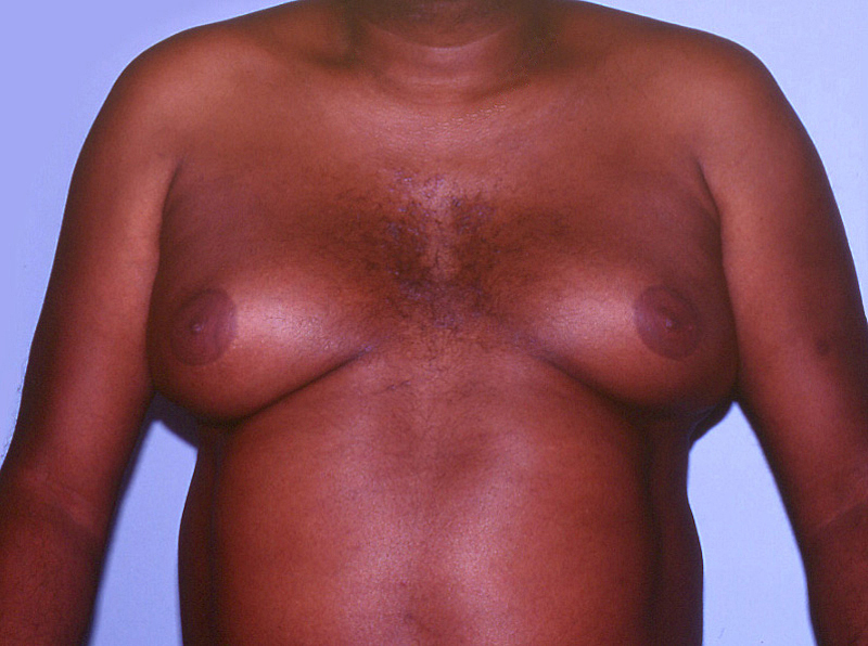 This patient developed marked enlargement of the abdominal girth and breasts while taking a regimen of indinavir plus stavudine plus lamivudine.<div>Photograph by David H. Spach, MD</div>