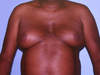 This patient developed marked enlargement of the abdominal girth and breasts while taking a regimen of indinavir plus stavudine plus lamivudine.