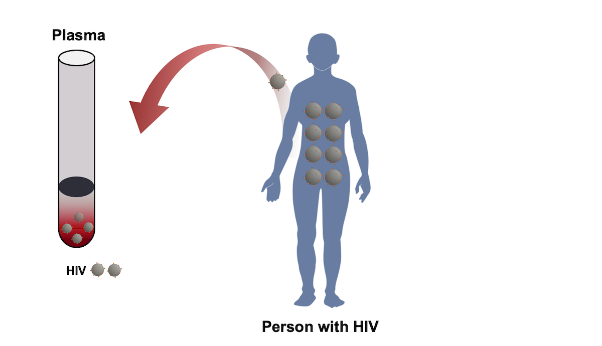 Conventional HIV drug resistance genotypes require a patient plasma sample and HIV is isolated from the plasma sample.<div>Illustration by David H. Spach, MD</div>