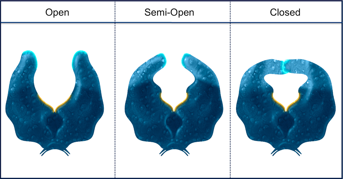 This figures shows the HIV protease enzyme in three configurations: open, semi-closed, and closed.<div>Illustration by David Ehlert, Cognition Studio and David Spach, MD</div>