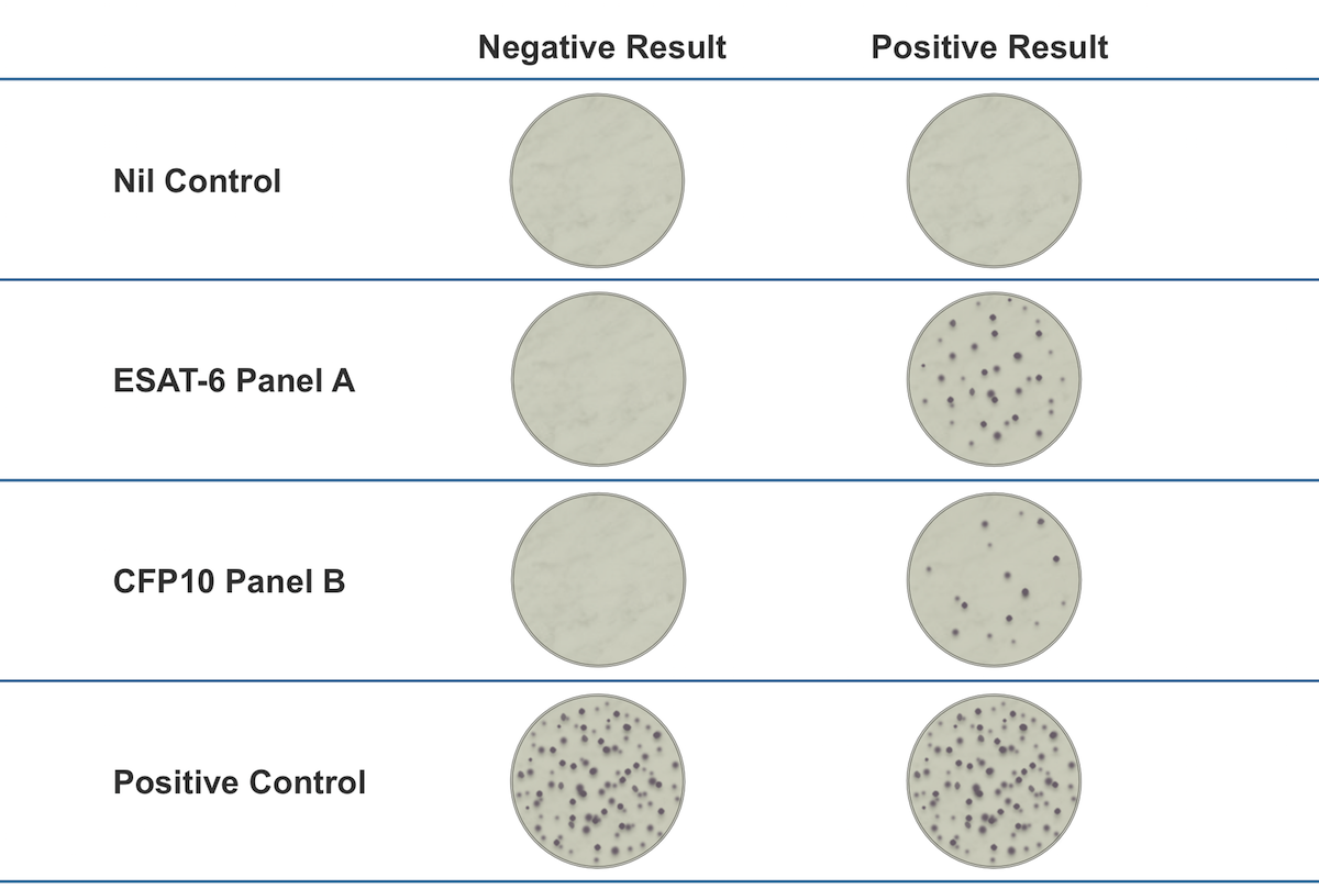 Results are interpreted by subtracting the spot count in the negative (Nil) control from the spot count in Panels A and B. The test is considered positive if Panel A minus Nil and/or Panel B minus Nil is 8 or more spots. The test is considered negative if both Panel A minus Nil and Panel B minus Nil is less than or equal to 4 spots. The test is considered borderline (equivocal) if the highest of the Panel A or Panel B spot count is such that the (Panel minus Nil) spot count is 5, 6, or 7 spots.<div>Source: Oxford Immunotec. T-SPOT.TB. Prescribing Information.</div>