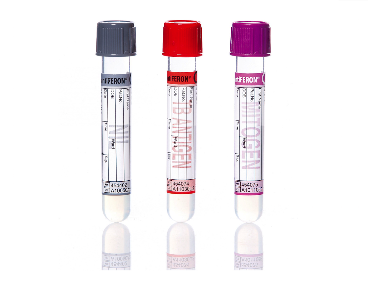 The QuantiFERON-TB Gold utilizes three tubes and 1 ml of blood is required for each tube: (1) the gray top Nil tube that serves as a negative control to adjust for background interferon-gamma; (2) the red top TB antigen tube that contains three mycobacterial proteins (ESAT-6, CFP-10, and TB 7.7) that will stimulate CD4 T-cell responses, and (3) the purple top mitogen tube that functions as a positive control to confirm baseline immune status.<div>Source: Qiagen</div>