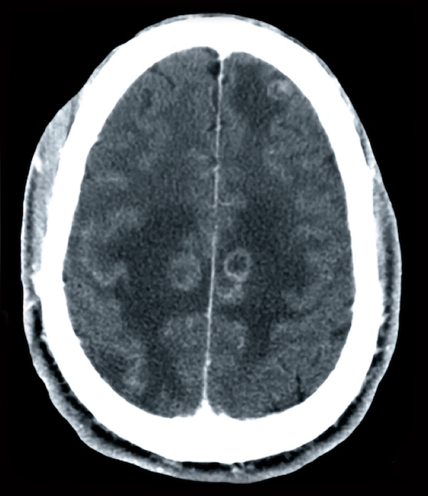 This contrast CT scan shows multiple ring-enhancing lesions with surrounding vasogenic edema.<div>Source: David H. Spach, MD</div>
