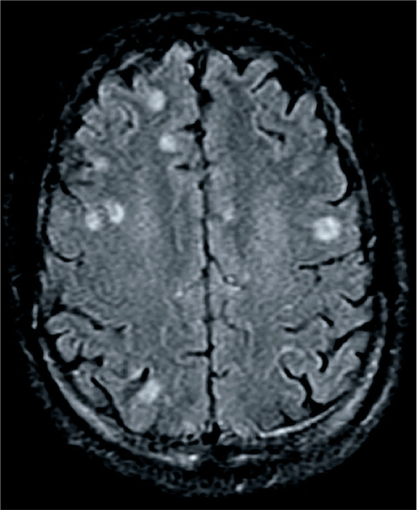 The MRI scan shows multiple lesions.<div>Source: David H. Spach, MD</div>