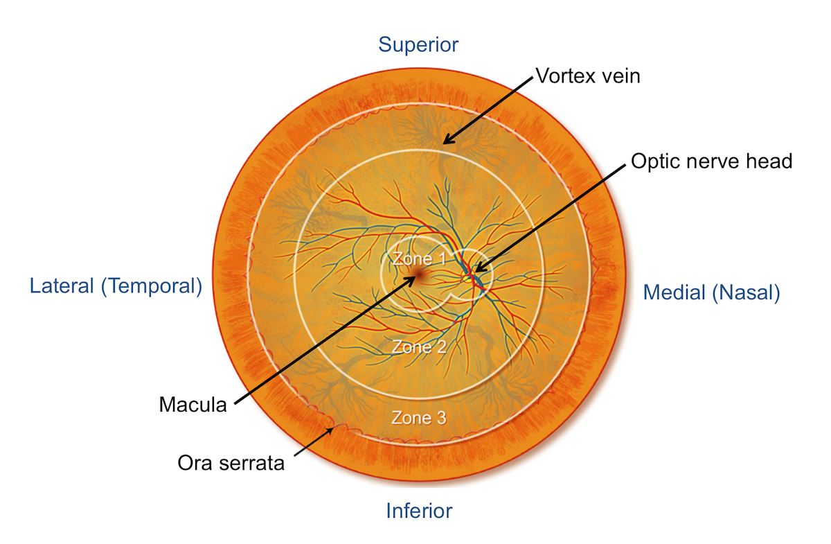 This illustration shows a schematic representation of an entire retina with superimposed anatomic zones (as defined by the UCLA CMV Retinopathy Study Group). Using a standard direct ophthalmologic examination, only a small portion of the retina is visualized (all of zone 1 and some of zone 2). Zone 1 comprises less than 10% of the entire retina. The retina lines most of the inner wall of the back of eyeball and it is comprised of thin, multi-layered neural tissue; the retina receives and transmits images. The medial region is also known as the nasal region and the lateral region is also referred to as the temporal region.<div>Source: The retinal anatomic zones are based on the classification in Holland GN, Buhles WC Jr, Mastre B, Kaplan HJ. A controlled retrospective study of ganciclovir treatment for cytomegalovirus retinopathy. Use of a standardized system for the assessment of disease outcome. UCLA CMV Retinopathy. Study Group. Arch Ophthalmol. 1989;107:1759-66. Illustration: David Ehlert, Cognition Studio.</div>