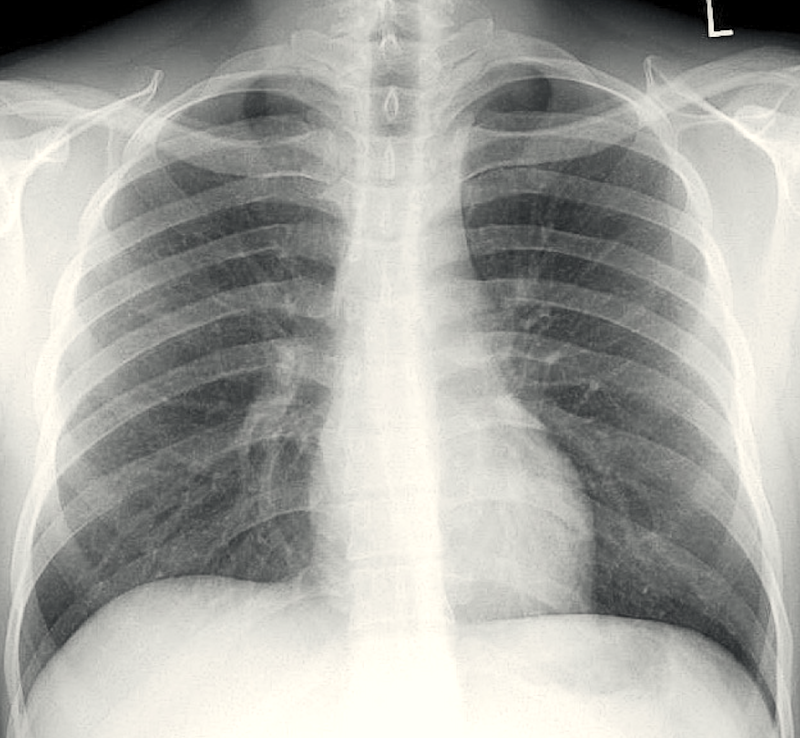 This chest radiograph in a patient with AIDS and disseminated histoplasmosis shows subtle diffuse ground-glass pulmonary infiltrates.<div>Source: David H. Spach, MD</div>