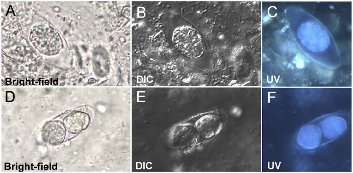 These stool sample wet mount tests show three wet mount techniques for diagnosing <em>I</em>. <em>belli</em>: bright-field microscopy (A and D); differential interference contrast (DIC) (B and E), and blue UV fluorescence microscopy (C and F). The images on the top row (A,B, and C) show <em>I</em>. <em>belli</em> with a single internal sporoblast and the images on the bottom row (C,D,and E) show two internal sporoblasts.<div>Source: Centers for Disease Control and Prevention.</div>