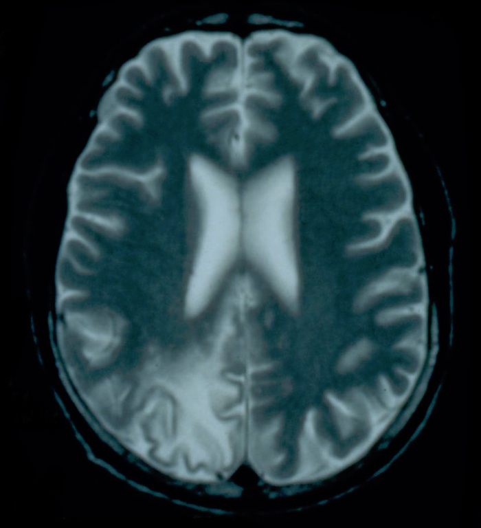 This T2-weighted MRI scan shows diffuse confluent lesions most prominent in the occipital lobes.<div>Source: David H. Spach, MD</div>