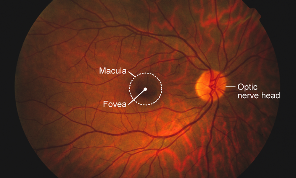 This image of a normal retina identifies important landmarks visible with a hand-held ophthalmoscope. The macula is in the center of the retina; it contains densely packed cones that specialize in visual acuity and color vision. The fovea is the central depression within the macula. The optic nerve functions to transmit impulses from the retina to the brain and the visible portion of the optic nerve is known as the optic nerve head or optic disc. Retinal veins and arteries are prominently seen extending from the optic nerve.<div></div>