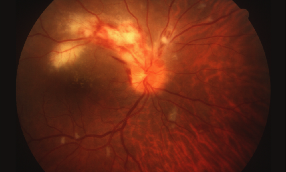 This retinal photograph taken from a patient with AIDS and cytomegalovirus retinitis shows an opacified, edematous retina (yellow) and hemorrhage (red); the retinitis involves the optic nerve head and extends adjacent to the macula along the retinal blood vessels. This lesion is considered an immediate sight-threatening lesion.<div></div>