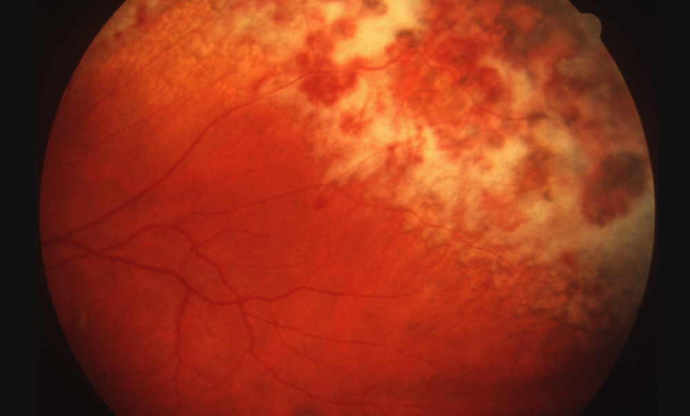 This retinal photograph taken from a patient with AIDS and cytomegalovirus retinitis shows extensive retinitis in a brushfire pattern in the upper and right region of the image. In the area farthest to the upper right, retinal necrosis and atrophy have led to retinal pigment epithelial change, as evident by the darkly pigmented appearance.<div></div>