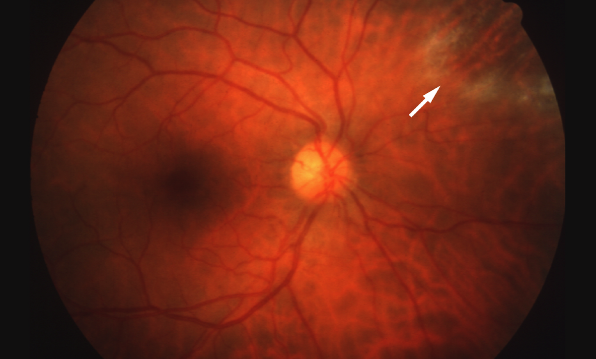 This retinal photograph is taken from a patient with AIDS in whom cytomegalovirus retinitis (arrow) developed in a slower fashion (&quot;smoldering CMV retinitis&quot;). This &quot;smoldering&quot; type of lesion often does not cause noticeable symptoms, and may escape detection until it extends closer to the site-threatening region (zone 1).<div></div>