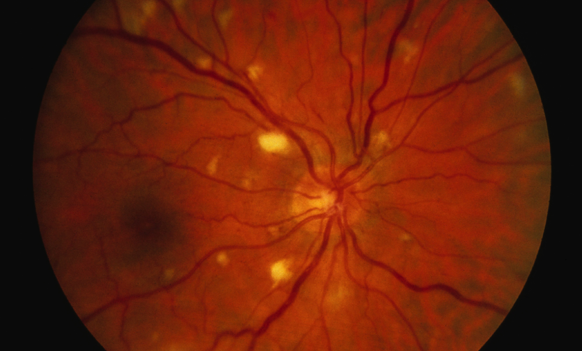 This retinal photograph taken from a patient with HIV retinopathy shows multiple &quot;cotton wool spots&quot;. These &quot;cotton wool spots&quot; represent nerve fiber layer infarcts, identical to those often seen in patients with hypertension or diabetes mellitus. These lesions do not cause symptoms and resolve spontaneously.<div></div>
