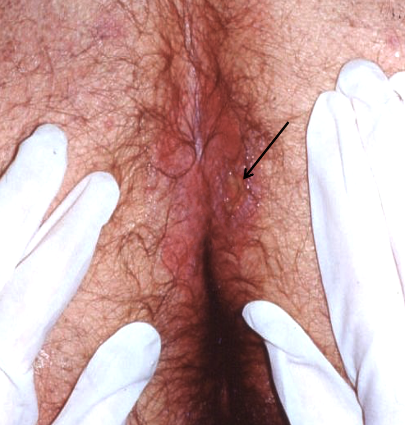 The black arrow denotes the ulcerated lesion with exduate in the gluteal cleft.<div></div>
