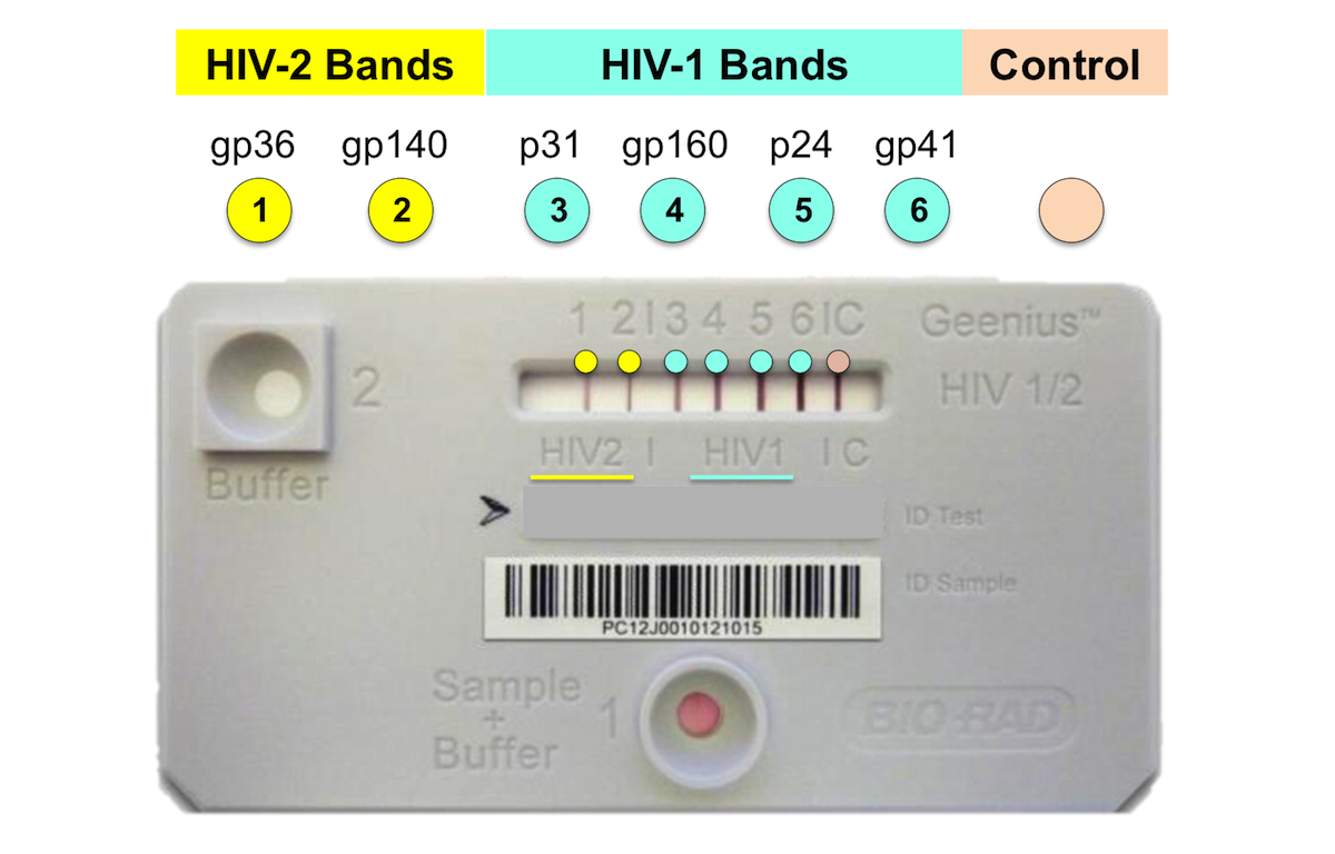The Geenius HIV-1/HIV-2 Supplemental Assay is a single-use immunochromatographic test that utilizes multiple recombinant or synthetic peptides to detect HIV-1 and HIV-2.  Note the HIV-2 antibodies detected include gp36 and gp140 (marked by yellow color).<div>Source: modified from Fernández McPhee C, Álvarez P, Prieto L, et al. HIV-1 infection using dried blood spots can be confirmed by Bio-Rad Geenius™ HIV 1/2 confirmatory assay. J Clin Virol. 2015;63:66-9.</div>