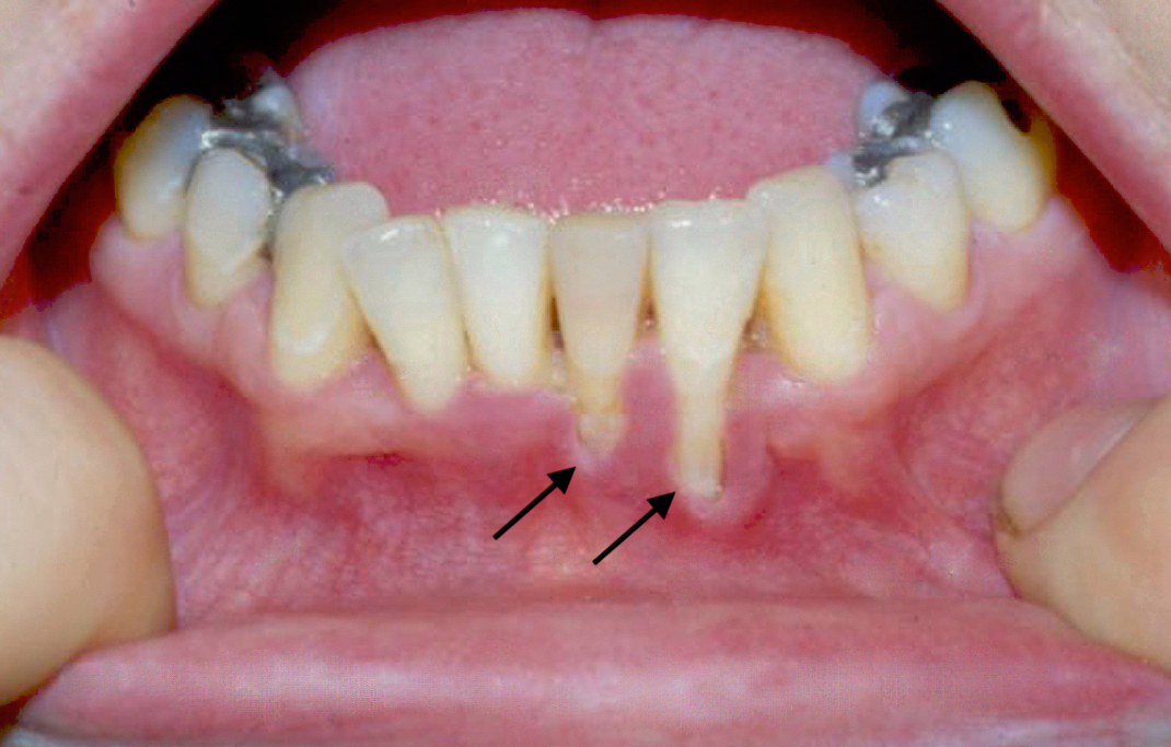 gingival hpv treatment